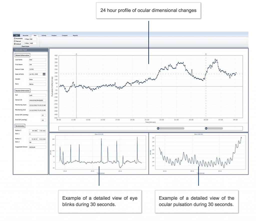 SensimedTriggerfish_Software_Chart