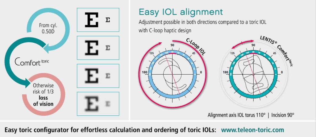 easy_iol_alignment