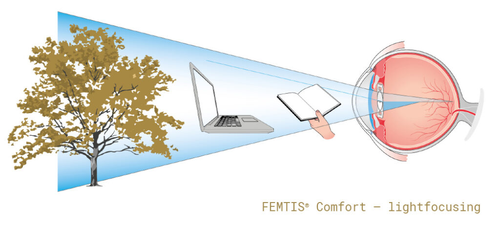 femtis_comfort_lightfocusing