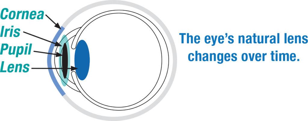 Eye Cross Section